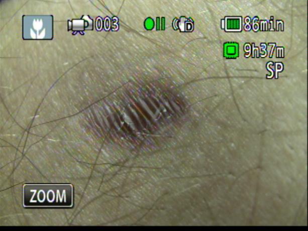 Patient Exam Cameras - Canon HF-M31 - Scar 02