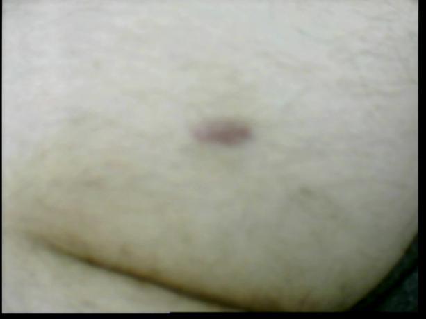 Patient Exam Cameras - GE Home Monitor - Scar 01