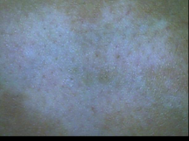 Patient Exam Cameras - GlobalMedia TotalExam (S-Video) - Vitiligo