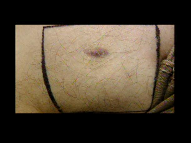 Patient Exam Cameras - Panasonic HDC-700TM - Scar 01