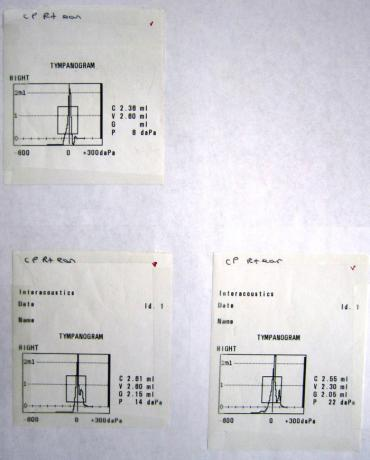 Tympanometers - Printout - MT10 - B