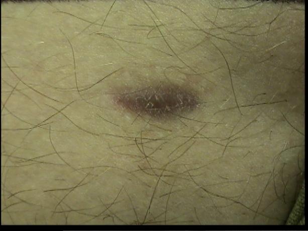 Patient Exam Cameras - Sony DCR-HC40 - Scar 01