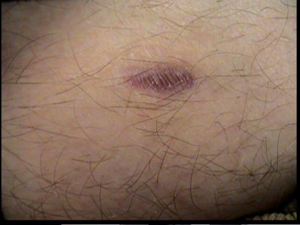 Patient Exam Cameras - Sony DCR-TRV38 - Scar 01