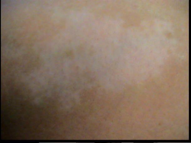 Patient Exam Cameras - Sony DCR-TRV38 - Vitiligo