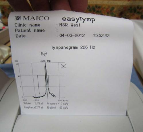 Tympanometers - easyTymp - Printout - A