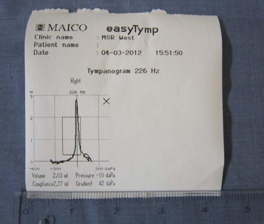 Tympanometers - easyTymp - Printout - B