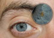DSLR - Eye - Zoom External Lighting - A