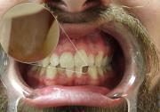 DSLR - Oral Frontal - Zoom Room Lighting - A