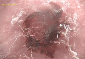 Flexicam: Dermatology Probe 2
