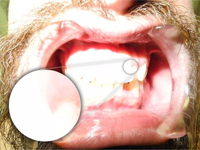 DSLR - Oral Frontal - Macro External Lighting - B