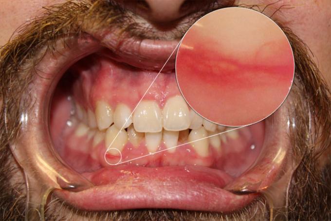 DSLR - Oral Frontal - Zoom External Lighting - A