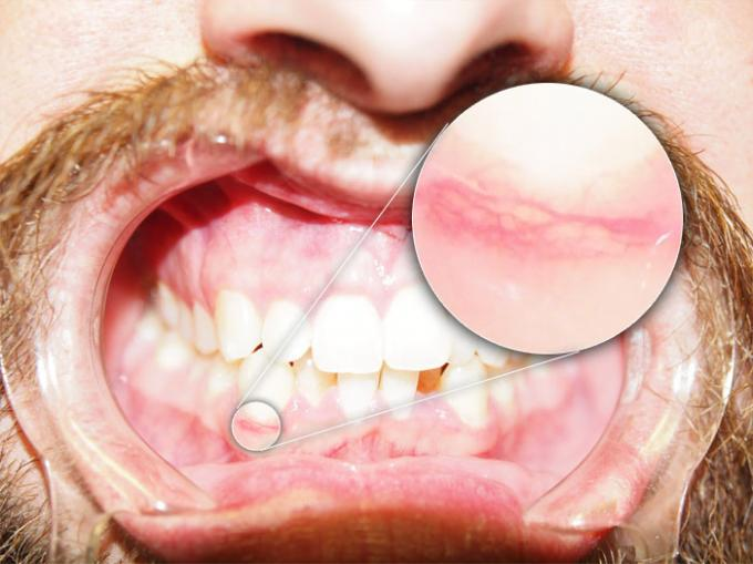 DSLR - Oral Frontal - Zoom External Lighting - B