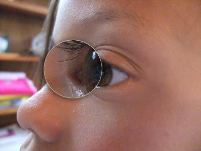 Basic Comparison - Eye B Detail - Color Rating 4, Detail Rating 3