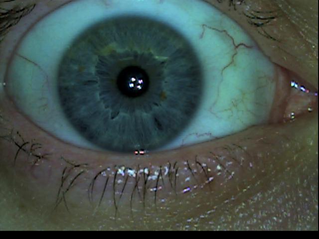 Patient Exam Cameras - GlobalMedia TotalExam (S-Video) - Eye 02