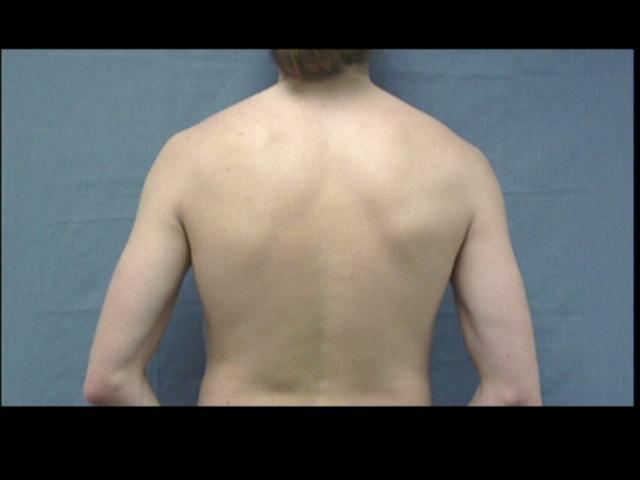 Patient Exam Cameras - Insignia NS-DV720P - Back