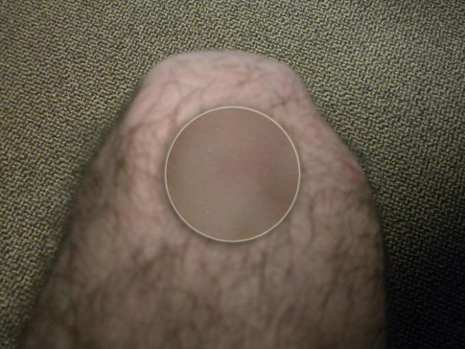 Basic Comparison - Knee B Detail - Color Rating 4, Detail Rating 1