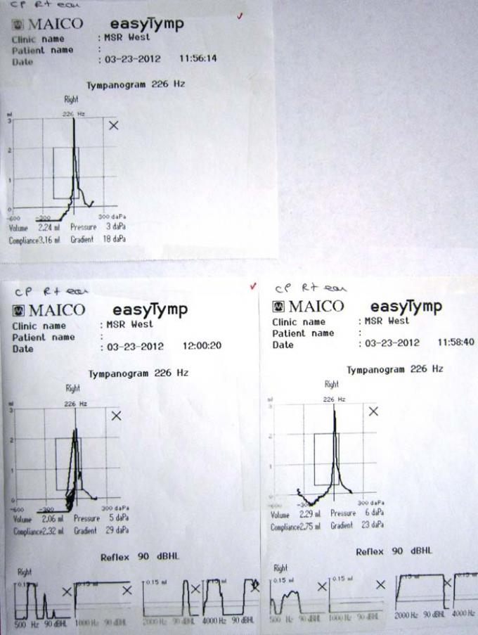Tympanometers - Printout - easyTymp - A