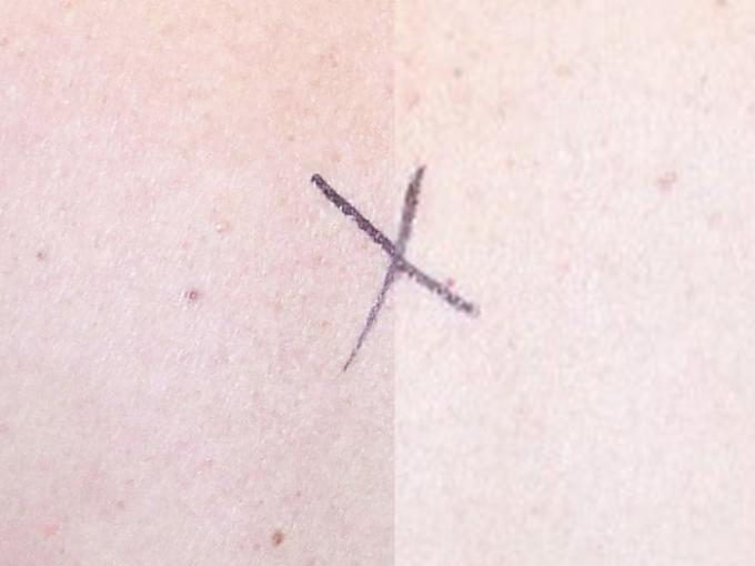 Resolution Comparison B - 12 MP (left) vs. 1.2 MP (right)