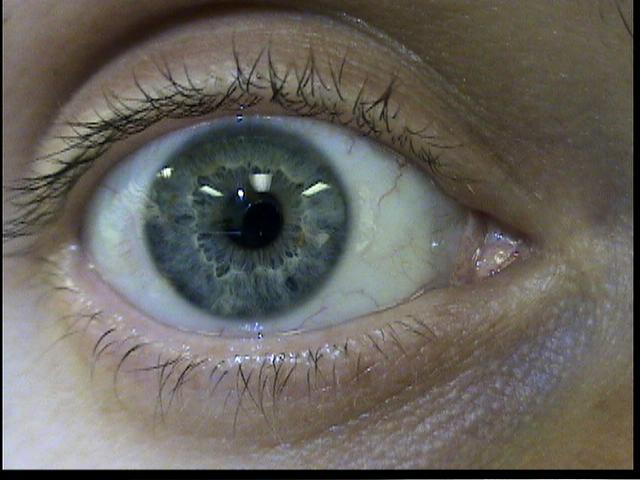 Patient Exam Cameras - Sony DCR-HC40 - Eye 01