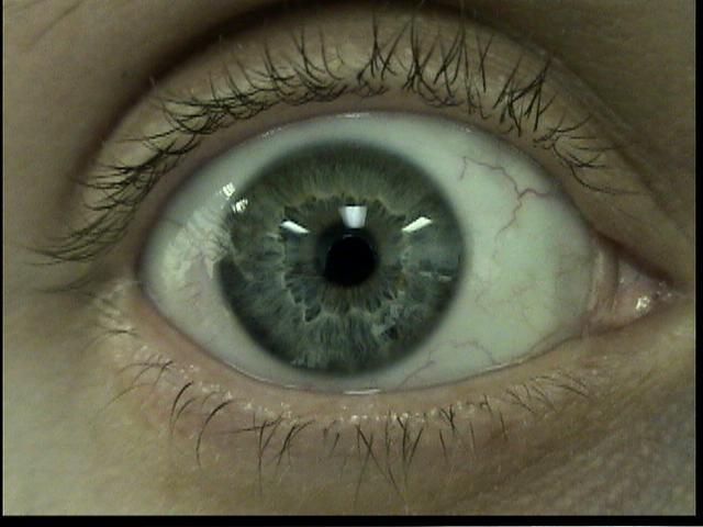 Patient Exam Cameras - Sony DCR-HC40 - Eye 02