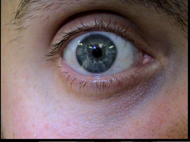 Patient Exam Cameras - Sony DCR-TRV38 - Eye 01